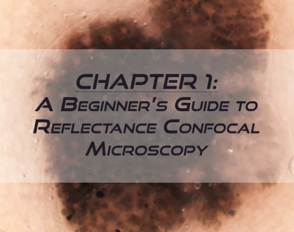 RCM Chapter 1: A Beginner's Guide to Reflectance Confocal Microscopy
