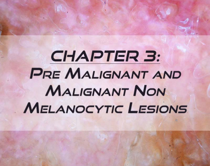 RCM Chapter 3: Pre-Malignant and Malignant Non-Melanocytic Lesions